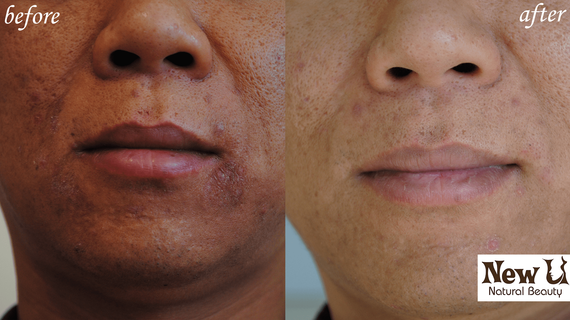 Acne Treatment Scar Removal Services Las Vegas Before and After