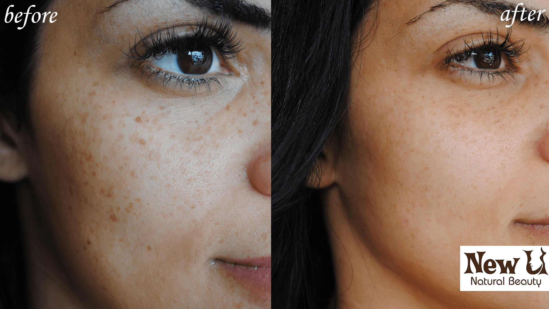 Skin Pigmentation 3 Las Vegas Before & After