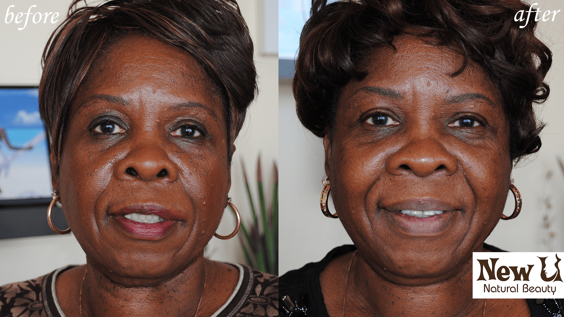 Skin Pigmentation 4 Las Vegas Before & After