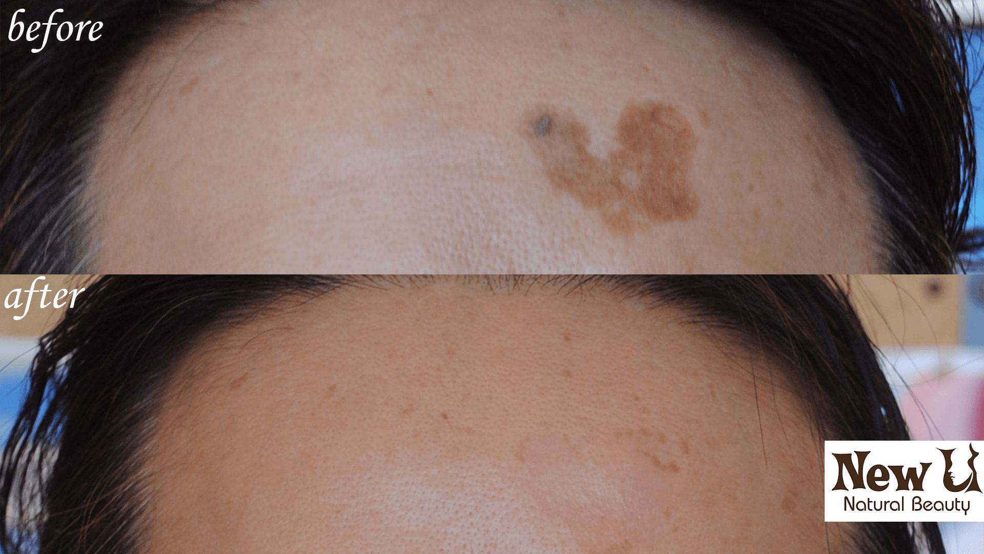 Skin Pigmentation 5 Las Vegas Before & After