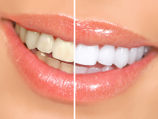 Teeth Whitening Natural Remedies Las Vegas