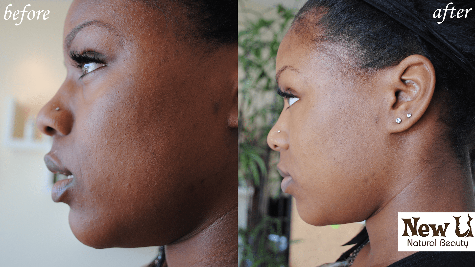 Acne Treatment 2 Las Vegas Before and After
