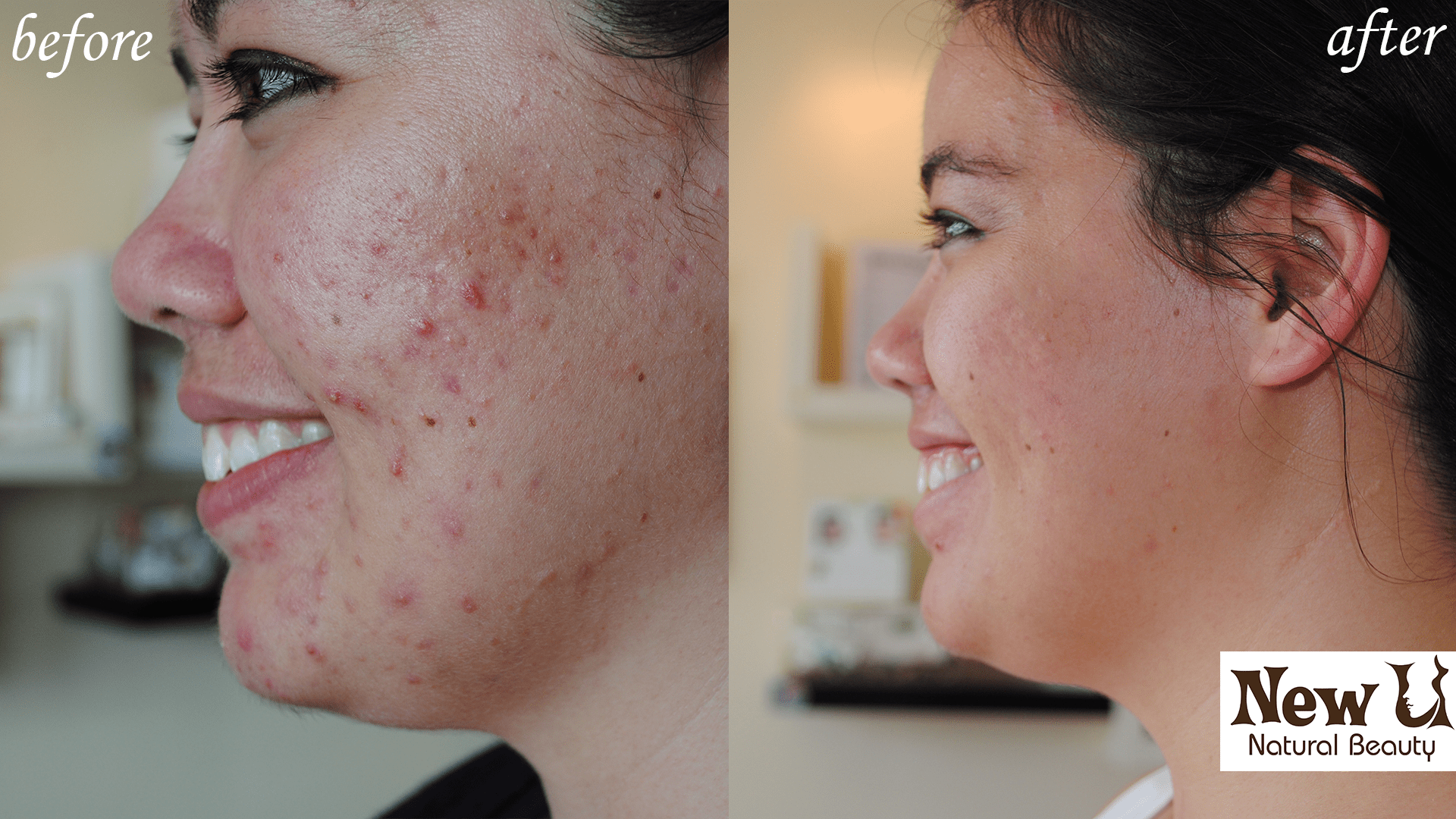 Acne Treatment 3 Las Vegas Before and After