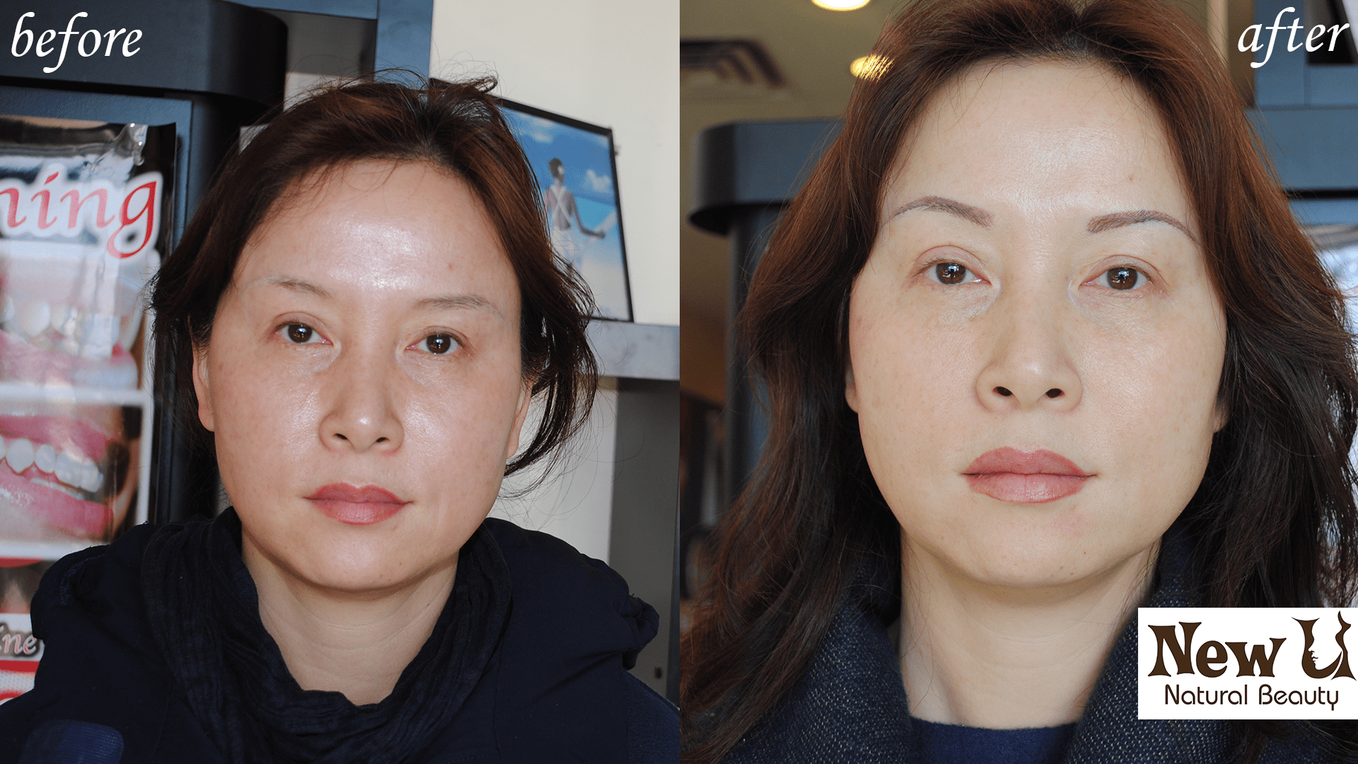 Beyond Botox 3 Las Vegas Before and After