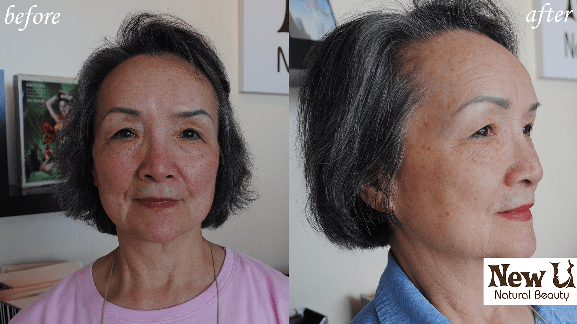Beyond Botox 4 Las Vegas Before and After