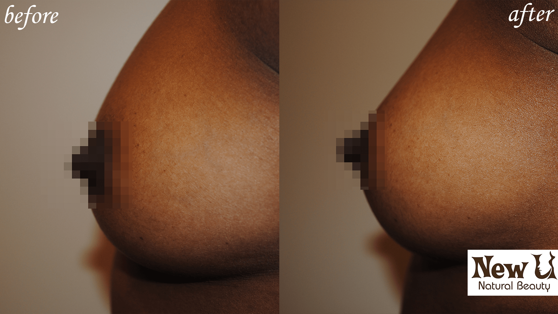 Breast Enhancement 1 Las Vegas Before and After