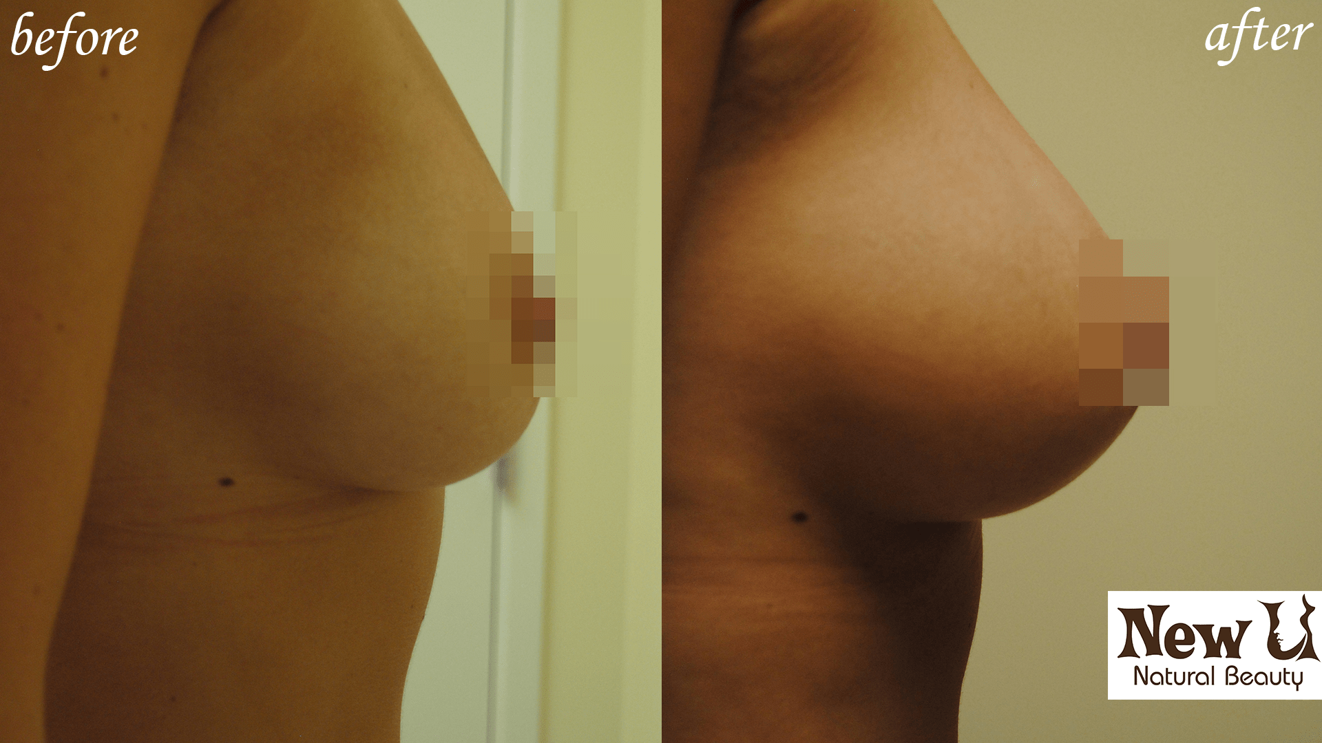 Breast Enhancement 2 Las Vegas Before and After