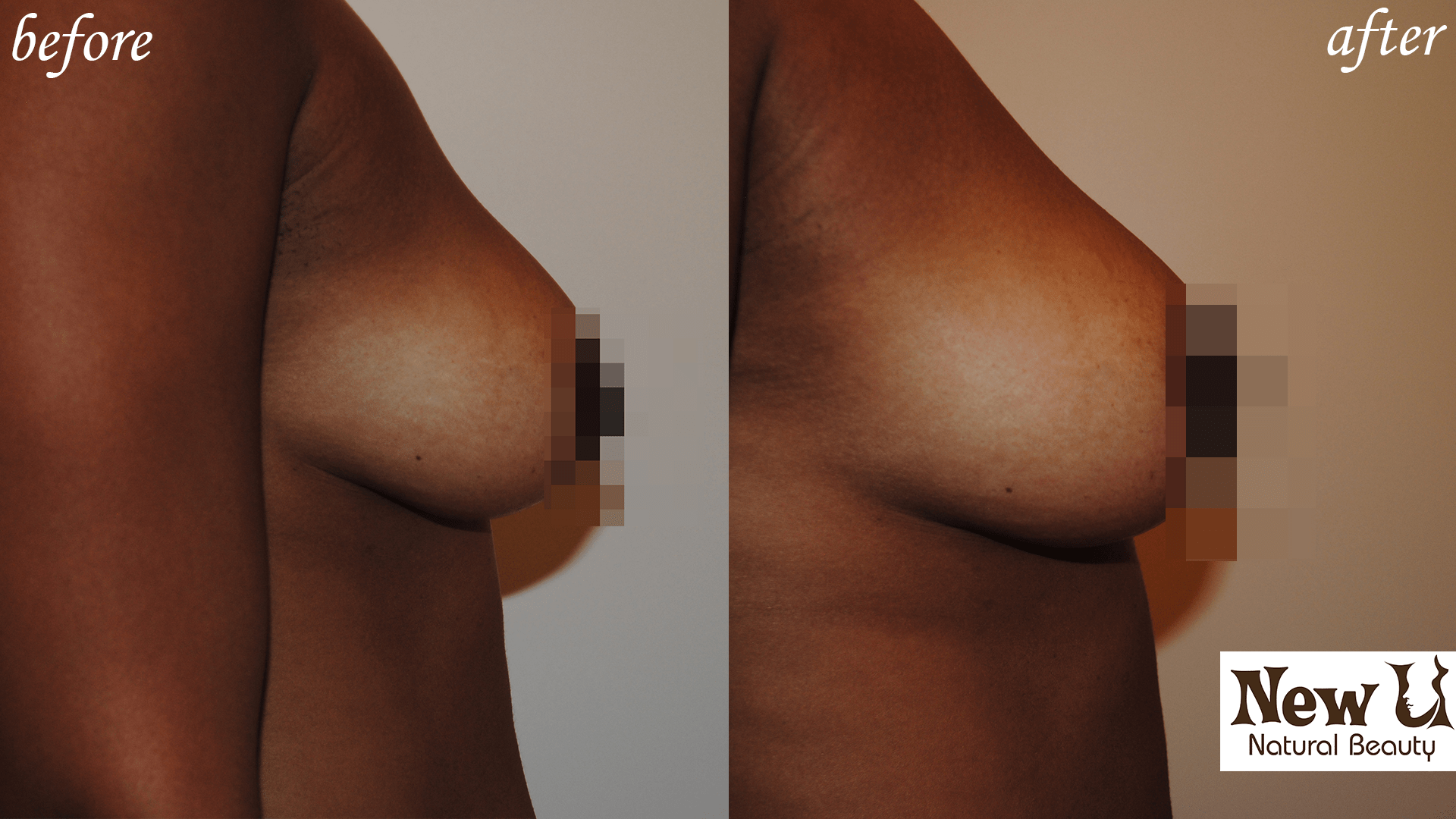 Breast Enhancement 3 Las Vegas Before and After