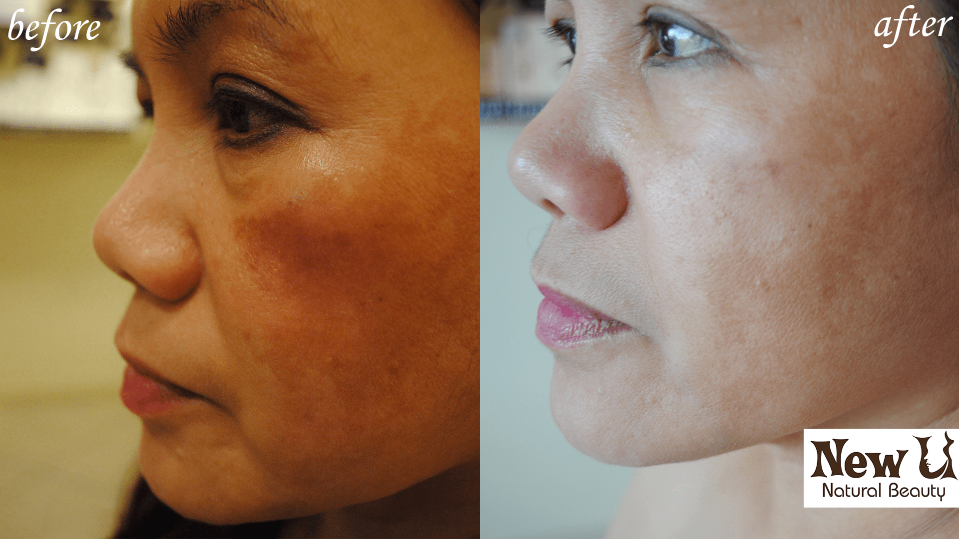 Organic Skin Care 2 Las Vegas Before and After