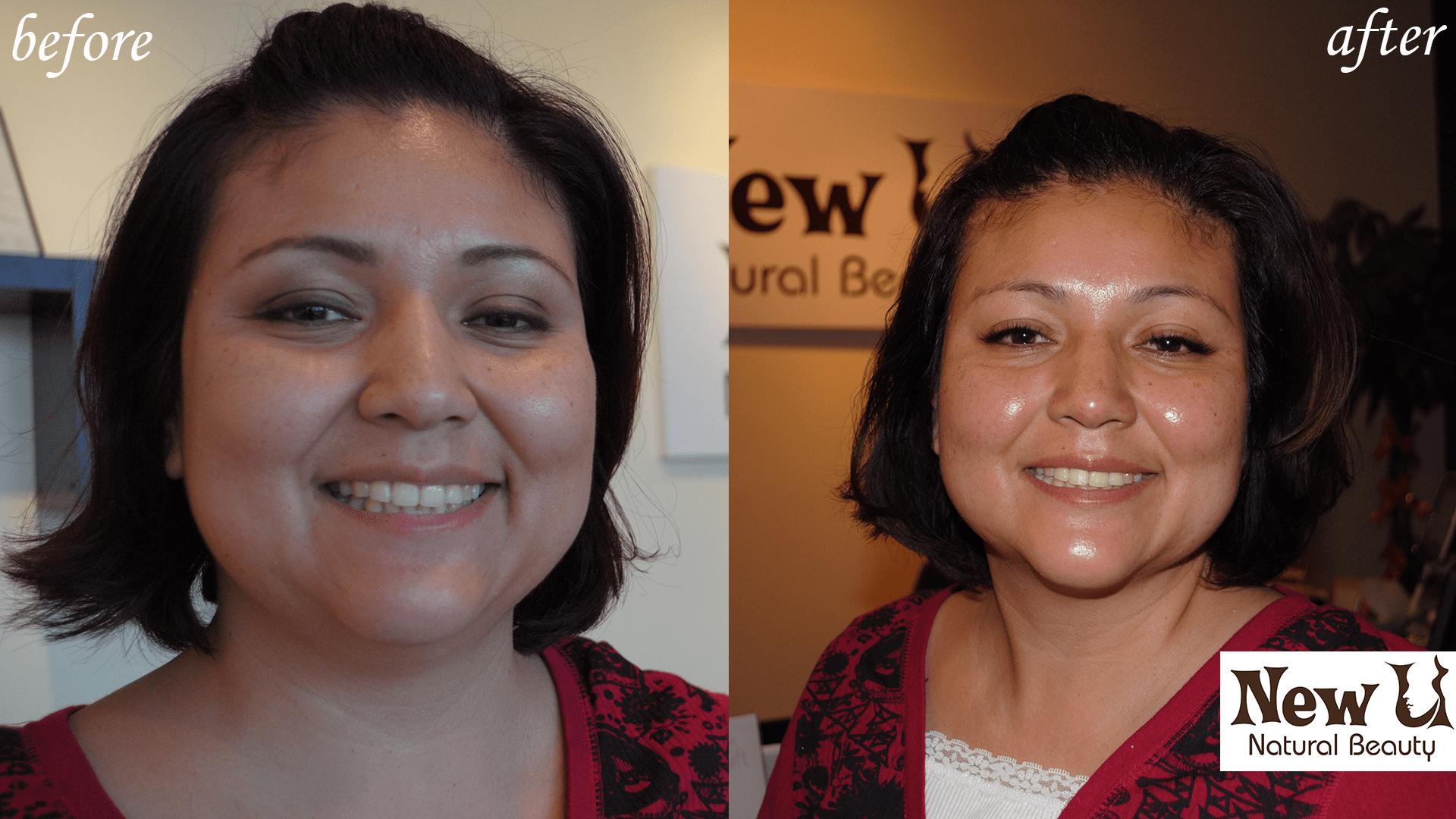 Organic Skin Care 3 Las Vegas Before and After