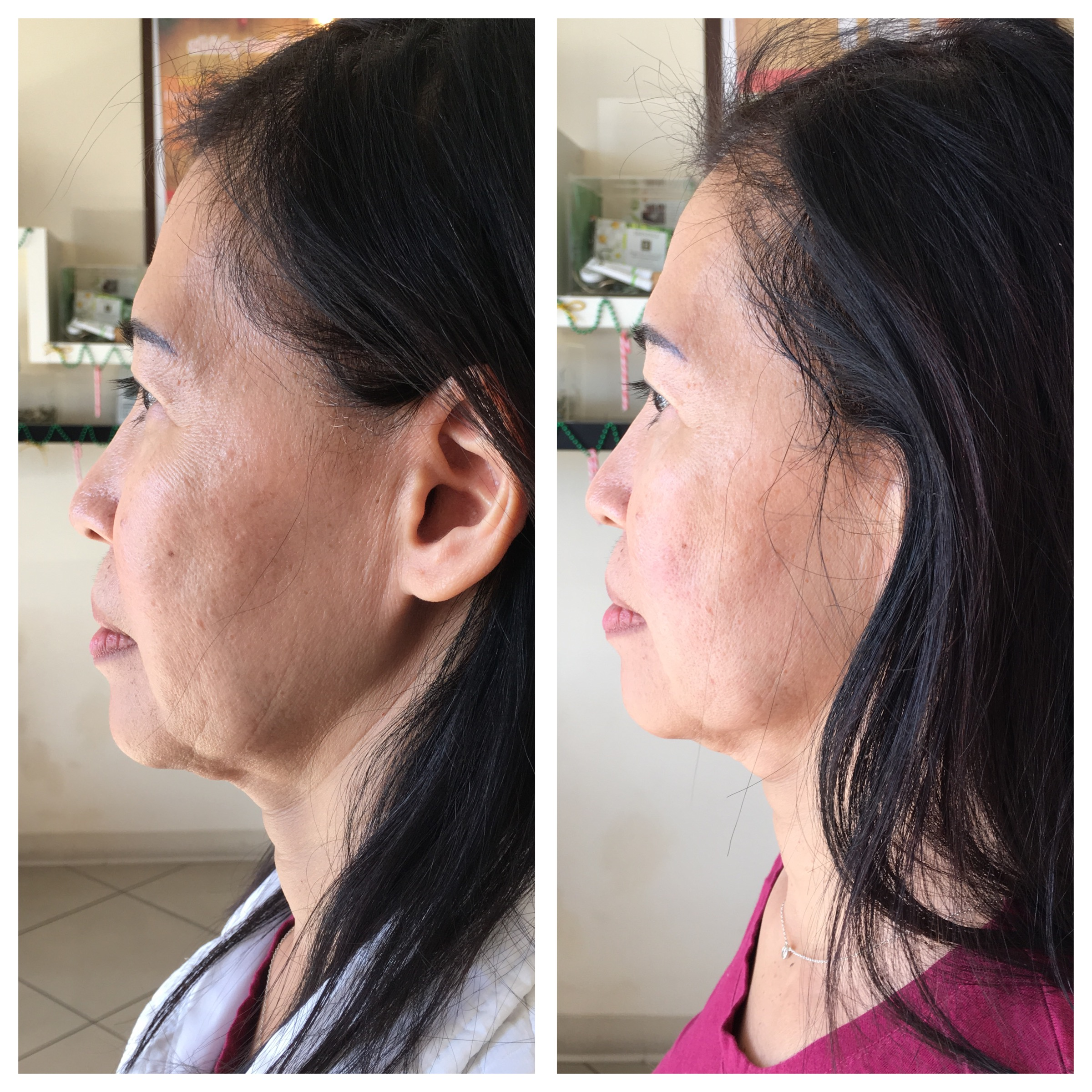 Ultherapy Specials Las Vegas NV